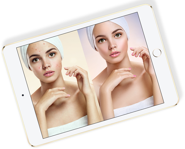 an iPad that displays a before and after retouch of a picture of a girl with bad acne
